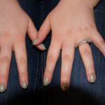 """Curing"" Rheumatoid Arthritis"