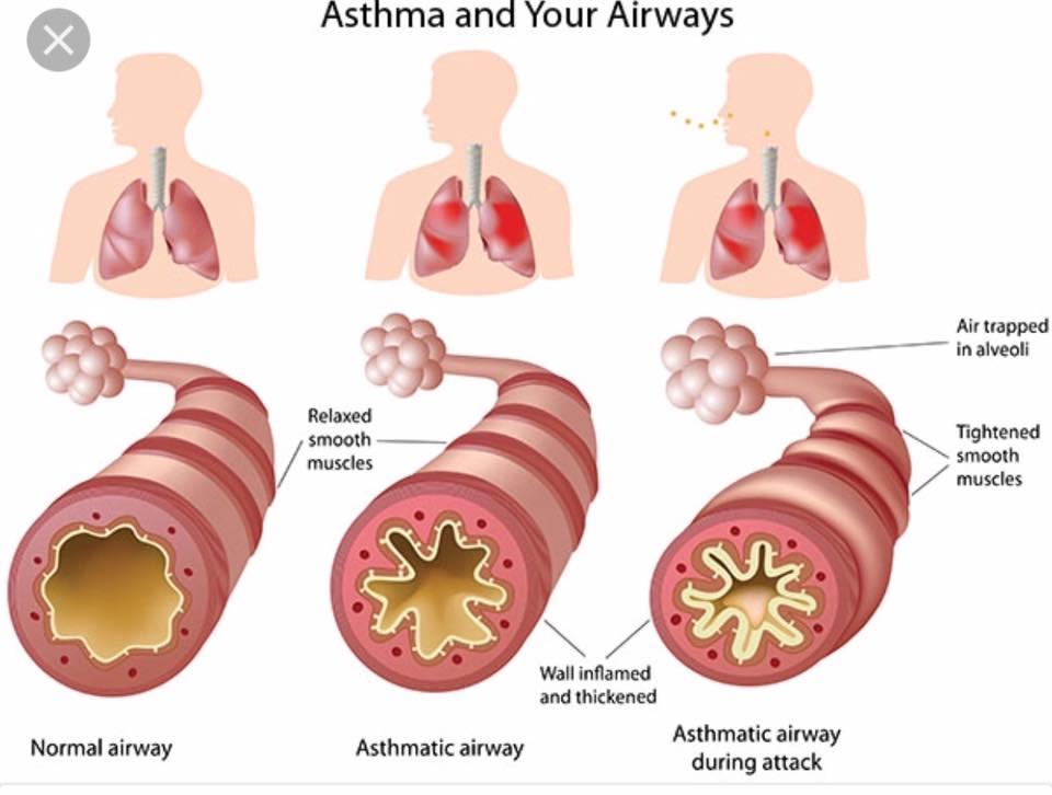 Asthma (6)