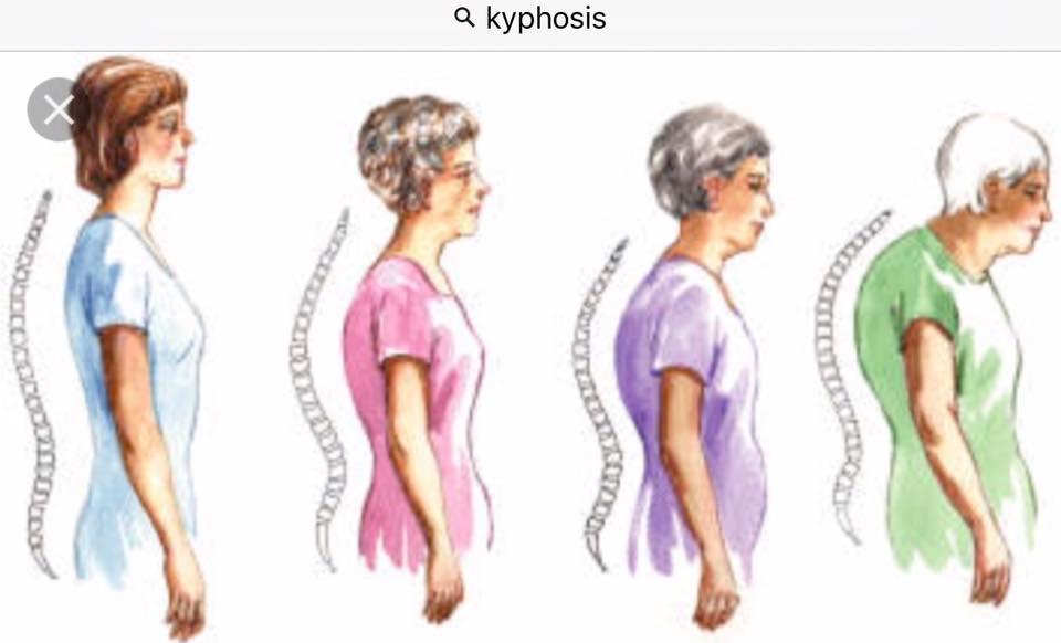 Osteoporosis (5)