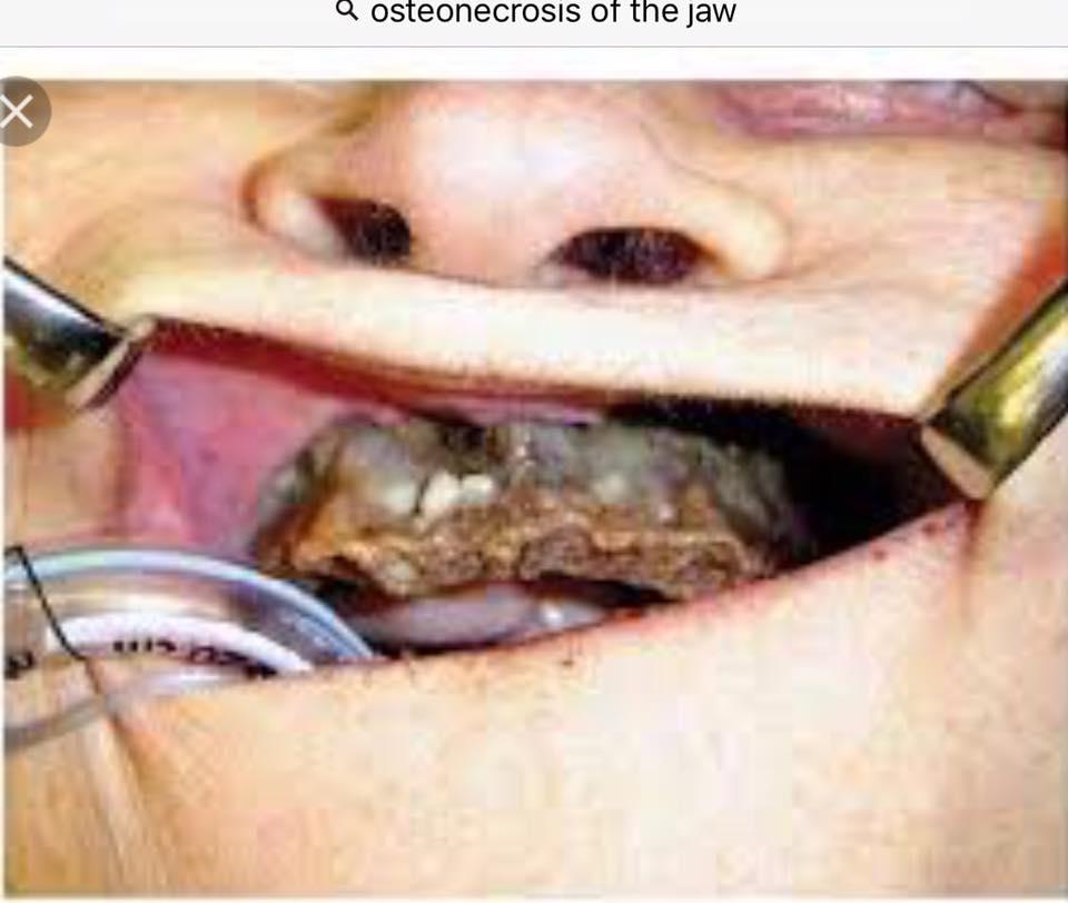 Osteoporosis (7)