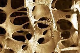 Osteoporosis (9)b