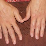 Mother of All Balms for Arthritis Relief