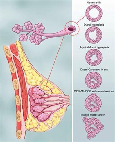 colonoscopy question 11-7-14