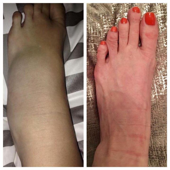 sprain 1